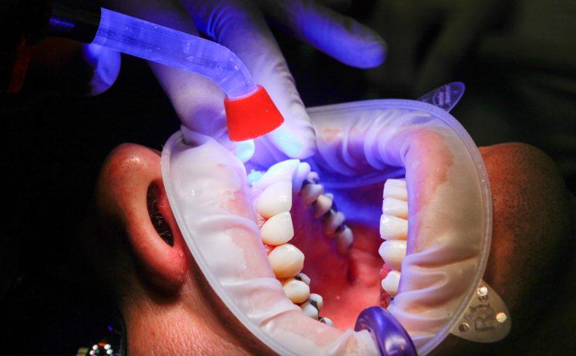 Złe postępowanie odżywiania się to większe niedobory w jamie ustnej natomiast dodatkowo ich utratę